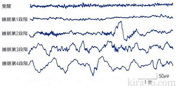 脳波と夜驚症の関係