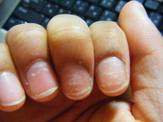 爪の白い点画像