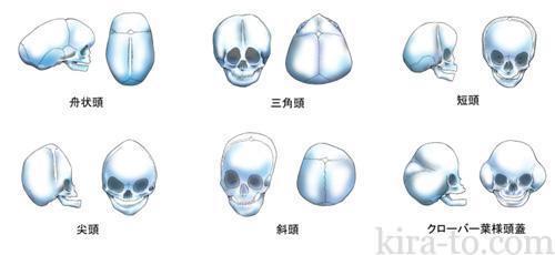 小児頭蓋骨2