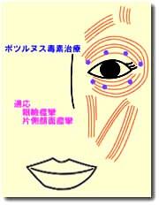 引用眼瞼痙攣ボトックス注射