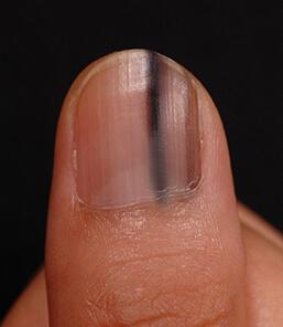 爪のメラノーマ(皮膚がんのひとつ)の可能