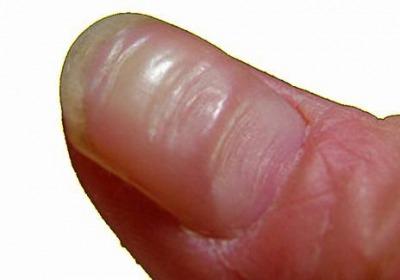 爪の溝が深い