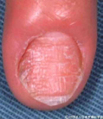 カンジダ性慢性爪囲炎