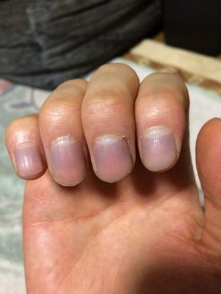 チアノーゼ爪
