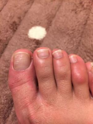 足の爪が波打つ