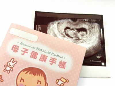胎児エコー写真