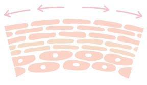 妊娠線 引用